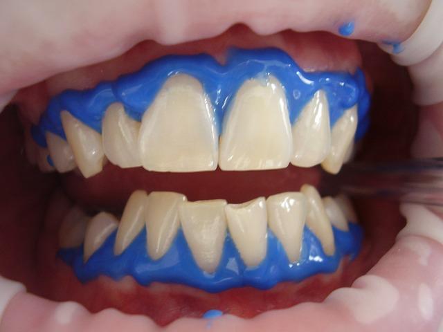 Wizyta w gabinecie dentystycznym