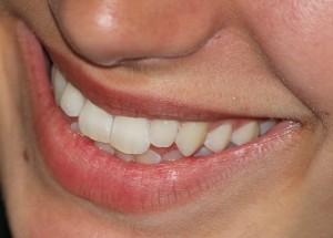 Zdrowe zęby po wizycie u dentysty