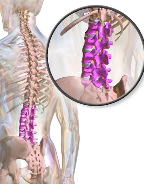 Nieinwazyjne leczenie kręgosłupa