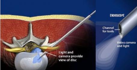 Badanie endoskopowe kręgosłupa